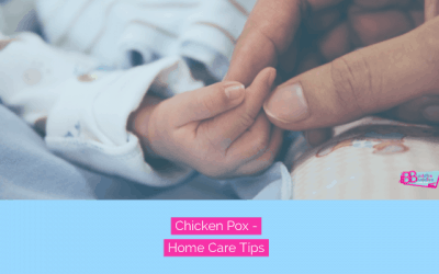 Chicken Pox Tips for Babies